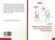 Hémostase endoscopique de la maladie ulcéreuse hémorragique kitap kapağı
