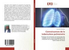 Couverture de Connaissances de la tuberculose pulmonaire