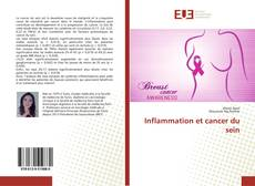 Bookcover of Inflammation et cancer du sein