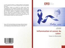 Couverture de Inflammation et cancer du colon