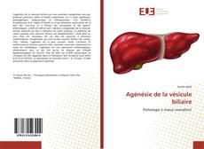Bookcover of Agénésie de la vésicule biliaire