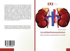Bookcover of Les phéochromocytomes