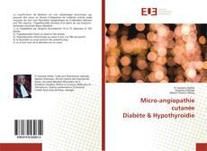 Bookcover of Micro-angiopathie cutanéeDiabète & Hypothyroïdie
