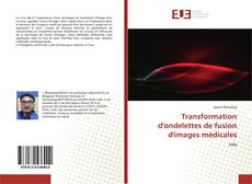 Bookcover of Transformation d'ondelettes de fusion d'images médicales