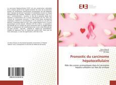 Borítókép a  Pronostic du carcinome hépatocellulaire - hoz