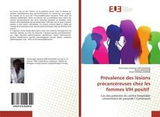 Buchcover von Prévalence des lésions précancéreuses chez les femmes VIH positif