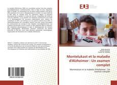 Montelukast et la maladie d'Alzheimer : Un examen complet kitap kapağı