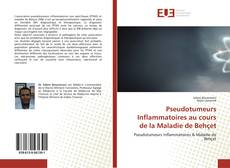 Couverture de Pseudotumeurs Inflammatoires au cours de la Maladie de Behçet