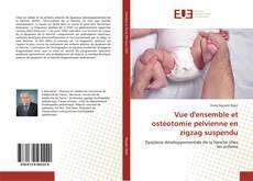 Bookcover of Vue d'ensemble et ostéotomie pelvienne en zigzag suspendu