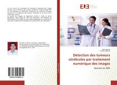 Bookcover of Détection des tumeurs cérébrales par traitement numérique des images