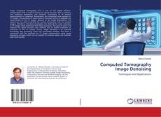 Borítókép a  Computed Tomography Image Denoising - hoz