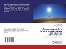 Bookcover of Применение HIFU в лечении варикозных вен нижних конечностей