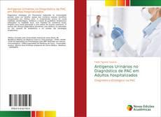 Bookcover of Antígenos Urinários no Diagnóstico de PAC em Adultos hospitalizados