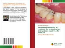 Borítókép a  Factores determinantes na cirurgia de recobrimento radicular - hoz