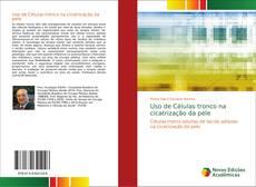 Bookcover of Uso de Células tronco na cicatrização da pele