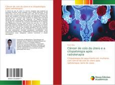 Copertina di Câncer de colo do útero e a citopatologia após radioterapia