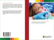 Buchcover von Coronectomia Dental