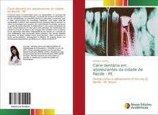 Copertina di Cárie dentária em adolescentes da cidade de Recife - PE