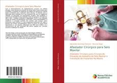 Bookcover of Afastador Cirúrgico para Seio Maxilar