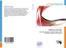 Bookcover of Glomus tumor