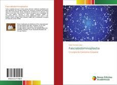 Bookcover of Fasciabidominoplastia