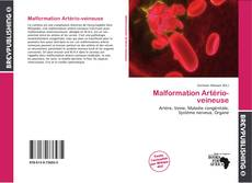 Bookcover of Malformation Artério-veineuse