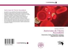 Обложка Anévrisme de l'Aorte Ascendante