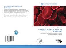 Bookcover of Coagulation Intravasculaire Disséminée