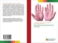 Dermatites Ocupacionais de Contato的封面