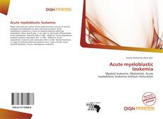 Bookcover of Acute myeloblastic leukemia
