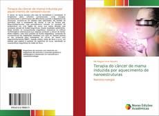 Terapia do câncer de mama induzida por aquecimento de nanoestruturas kitap kapağı