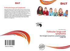 Capa do livro de Follicular large-cell lymphoma