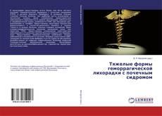 Обложка Тяжелые формы геморрагической лихорадки с почечным сидромом