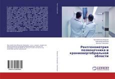 Borítókép a  Рентгенометрия позвоночника и краниовертебральной области - hoz