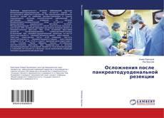 Bookcover of Осложнения после панкреатодуоденальной резекции