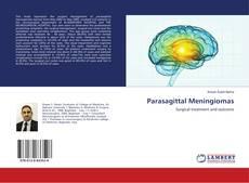 Bookcover of Parasagittal Meningiomas