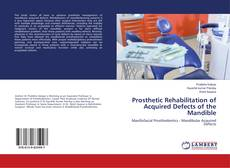 Bookcover of Prosthetic Rehabilitation of Acquired Defects of the Mandible