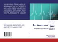 Buchcover von Дисфункции синусного узла: