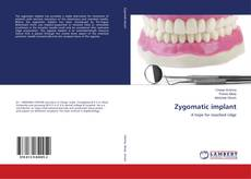 Bookcover of Zygomatic implant