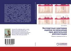 Обложка Экспертные критерии оценки осложнений при дентальной имплантации