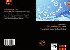 Bookcover of Maculopapular rash