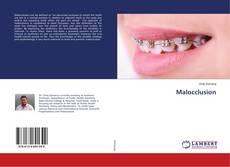 Buchcover von Malocclusion