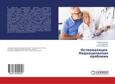 Bookcover of Остеомаляция. Недооцененная проблема