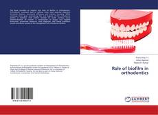 Bookcover of Role of biofilm in orthodontics