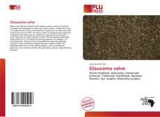 Bookcover of Glaucoma valve
