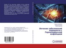 Bookcover of Лечение заболеваний пародонта с Герпесвирусной инфекцией