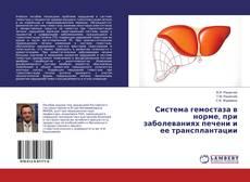 Обложка Система гемостаза в норме, при заболеваниях печени и ее трансплантации