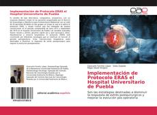 Bookcover of Implementación de Protocolo ERAS el Hospital Universitario de Puebla