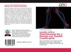Обложка Lesión LCA y Patelofemoral Dx y Manejo con Tendón Cuadricipital
