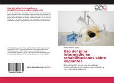 Bookcover of Uso del pilar intermedio en rehabilitaciones sobre implantes